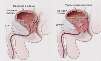 Аденома передміхурової залози, симптоми і лікування