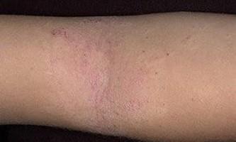 Атопічний дерматит