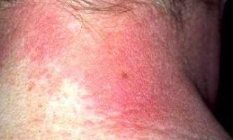 Алергічний дерматит: симптоми і лікування