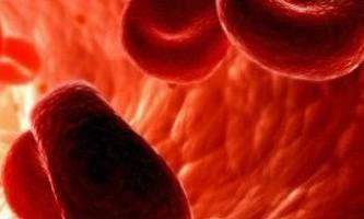 Анемія, діагностика і лікування