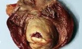 Аневризма серця