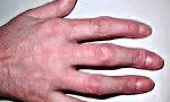 Артрит пальців