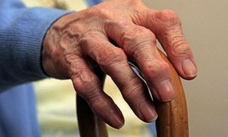 Артроз кистей і пальців рук: симптоми і лікування