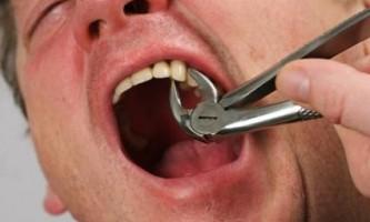 Бережімо здрово: як вирвати зуб безболісно