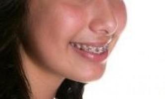 Брекети - малі жертви для красивої посмішки