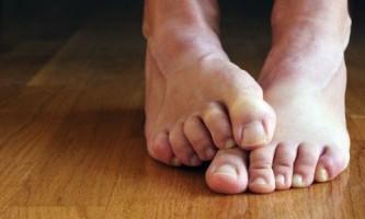 Чим можна лікувати грибок на ногах?