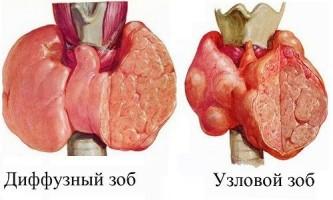 Що таке вузловий нетоксичний зоб щитовидної залози?