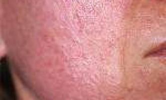 Демодекс: причини захворювання, його симптоми, як провести аналіз і ефективне лікування