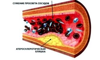 Діагностика і лікування атеросклерозу