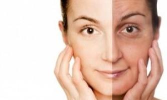 Фотостаріння зупинить сонцезахисний крем