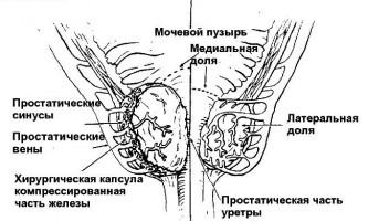 Гіпертрофія передміхурової залози у чоловіків