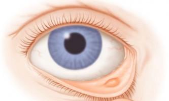 Халязіон нижньої повіки: симптоми і способи лікування