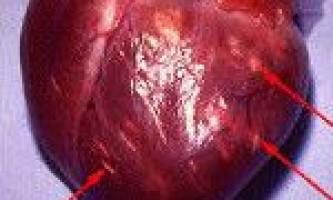 Інфекційно-алергійний міокардит