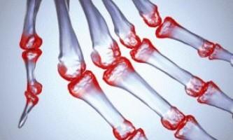 Інфекційний артрит