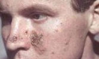 Еритематозна пухирчатка