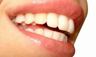 Як позбутися від плям на зубах