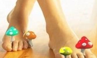 Як лікувати грибок на нігтях ніг?