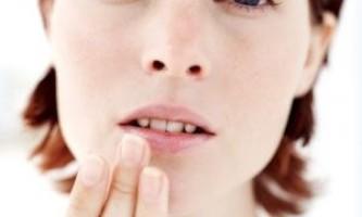 Як перемогти сухість губ і запобігти появі тріщин на губах