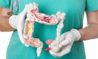 Як відбувається лікування геморою огірком?