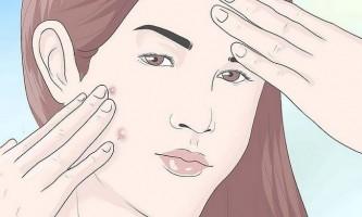 Як видалити прищі за допомогою зубної нитки і рідини для полоскання рота