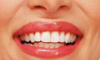 Як захистити передні зуби від карієсу