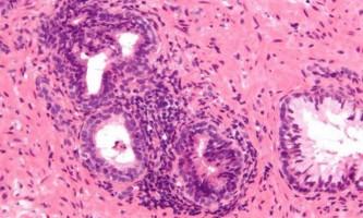 Калькульозний простатит у чоловіків: причини, симптоми, діагностика та лікування