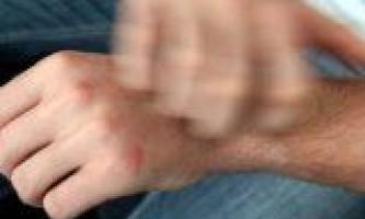 Свербіж шкіри: причини і лікування