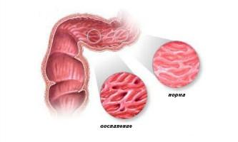 Лікування хвороби крона народними методами