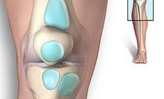 Лікування бурситу колінного суглоба: повертаємо легкість ході