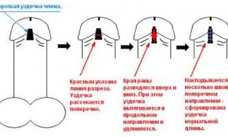 Лікування короткої вуздечки у чоловіків