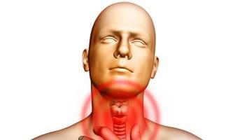 Лікування народними засобами допоможе при хронічному фарингіті