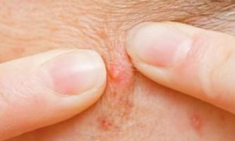 Лікування підшкірних прищів