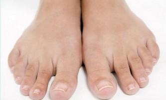 Ліки проти грибка нігтів