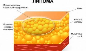 Ліпома: симптоми і лікування