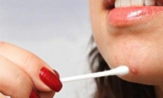 Наскільки саліцилова кислота ефективна в боротьбі з прищами?