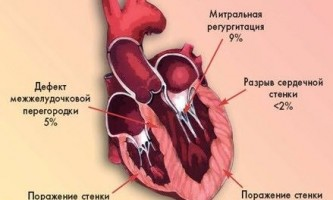 Міокардит: симптоми і лікування