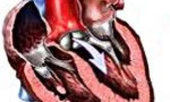 Митрально-аортальний порок