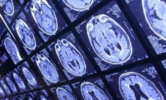 Нейрофізіологічні причини погіршення мислення при депресії, сдв і пмс