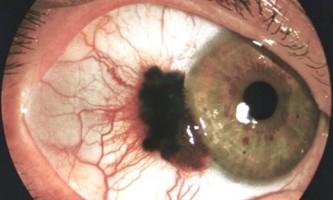 Пухлини очей