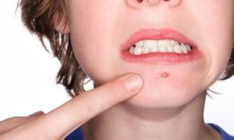 Особливості крему від прищів на обличчі