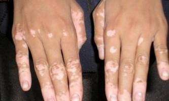 Пігментні плями на шкірі: чому вони з`являються і як від них позбавитися
