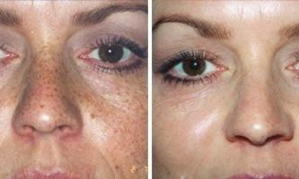Пілінг jessner допомагає вирішити проблеми зі шкірою обличчя