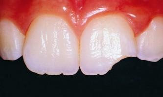 Чому ламаються зуби