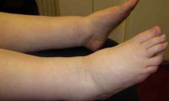 Чому набрякають ноги в щиколотках?