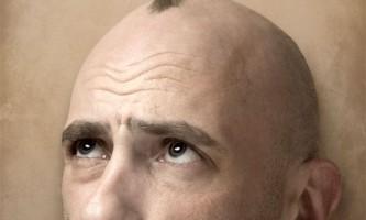 Чому випадає волосся у чоловіків