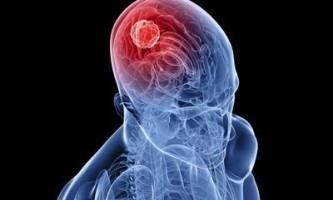 """Підтримка і допомога для мозку - ліки """"кавинтон"""". Показання до застосування та протипоказання"""