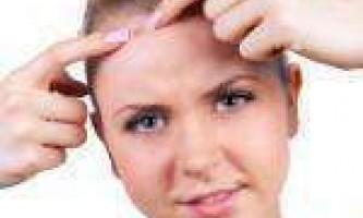 Підшкірні прищі: як позбутися від внутрішніх прищів