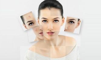 Підшкірні прищі - серйозна проблема для шкіри обличчя
