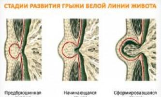 Причини і лікування защемленої грижі