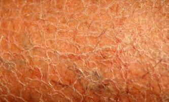 Причини дуже сухої шкіри тіла